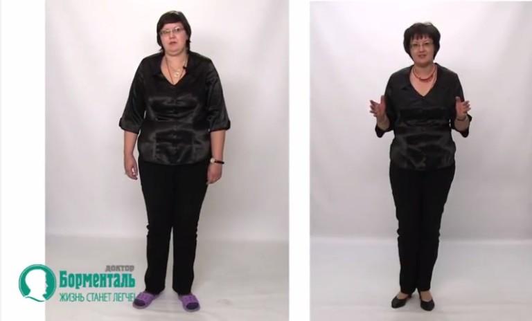В чем секрет похудения борменталя