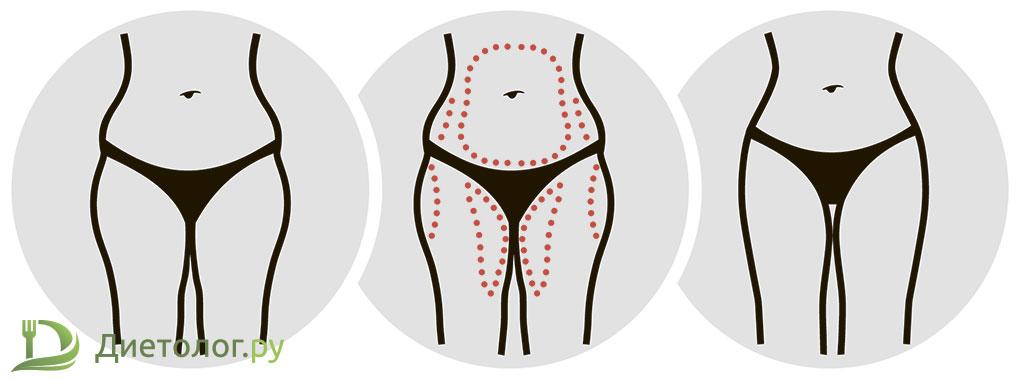 Плюсы хирургической операции при снижении веса и лечении ожирения