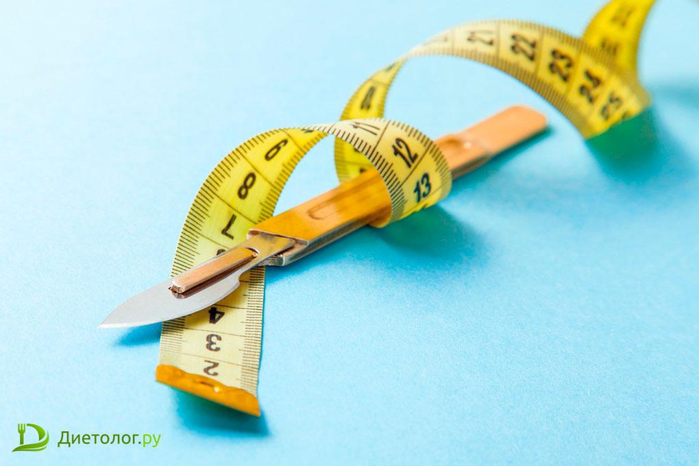 Хирургические методы снижения веса